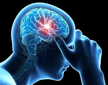 How Migraines Affect The Brain